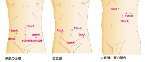 腹腔鏡手術の適応疾患について