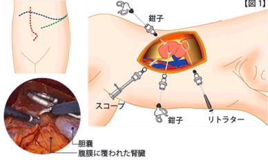 腎部分切除術