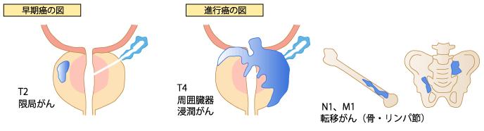 早期癌の図進行癌の図